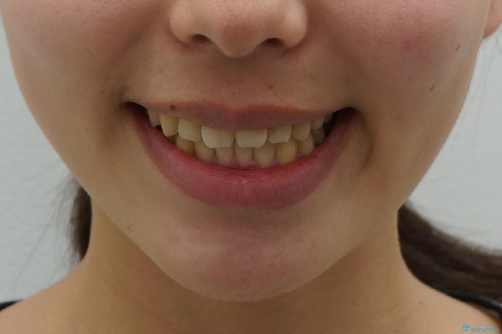 20代女性 前歯のねじれ・出っ歯 インビザラインで奥歯を下げて抜かずに治療の治療後(顔貌)