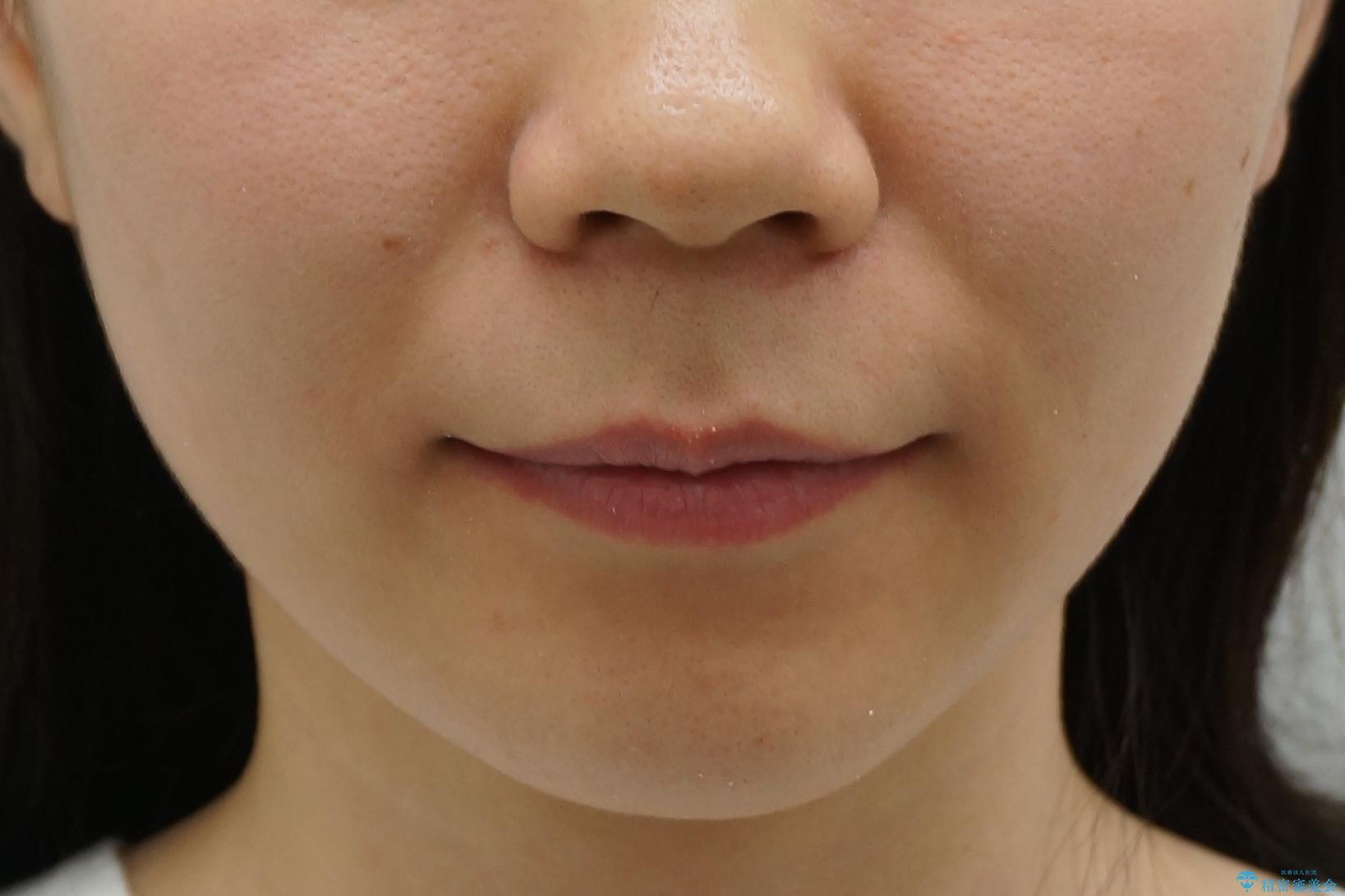 八重歯 奥歯のすれ違い ワイヤー矯正でしっかり治療の治療後(顔貌)