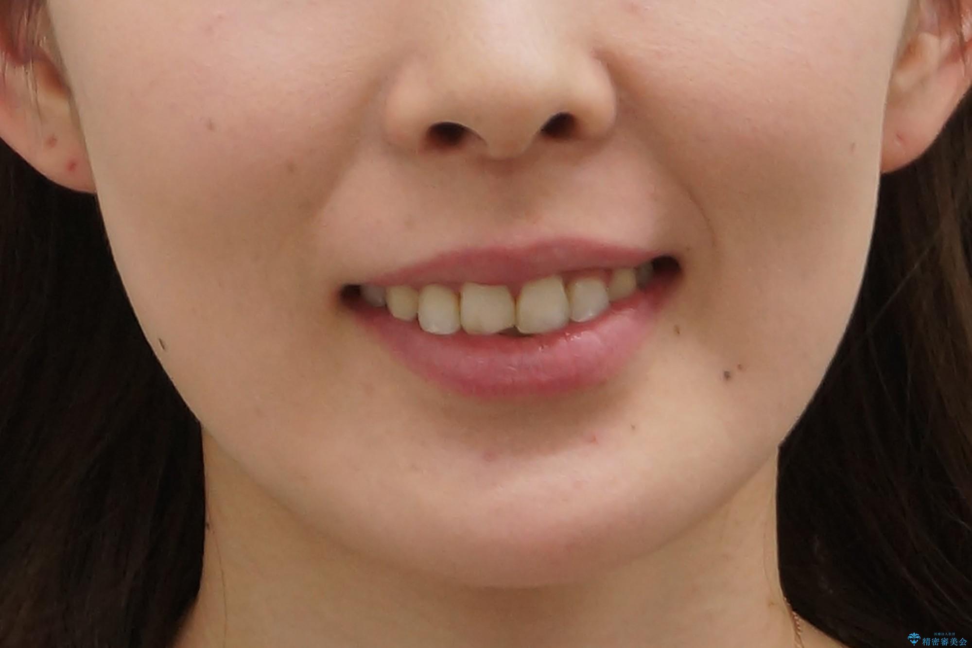 30代女性 抜かない矯正 出っ歯 低位歯を並べましたの治療後(顔貌)