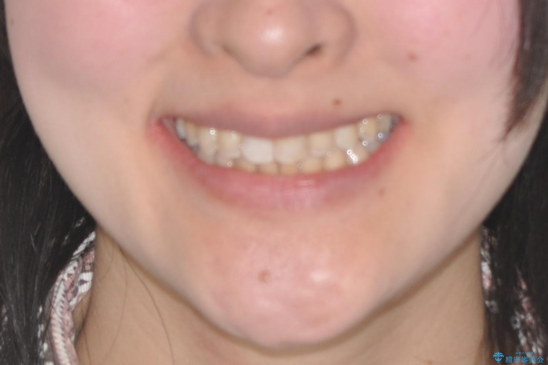 前歯のガタガタを結婚式前にキレイにしたいの治療後(顔貌)