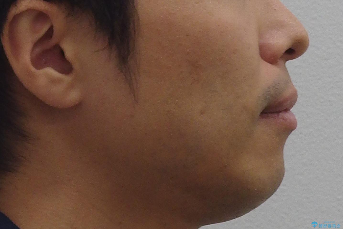 30代男性 歯を抜かないインビザライン 前歯のがたつきの治療の治療前(顔貌)