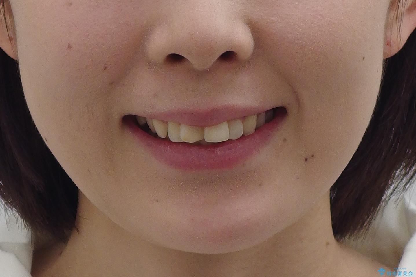 30代女性 抜かない矯正 出っ歯 低位歯を並べましたの治療前(顔貌)