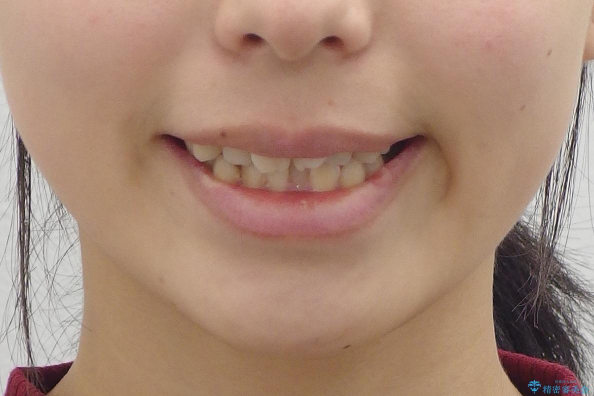 20代女性 前歯のねじれ・出っ歯 インビザラインで奥歯を下げて抜かずに治療の治療前(顔貌)