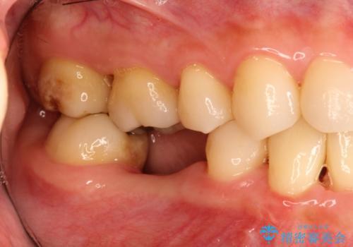 しっかり噛める奥歯。インプラント治療の治療前