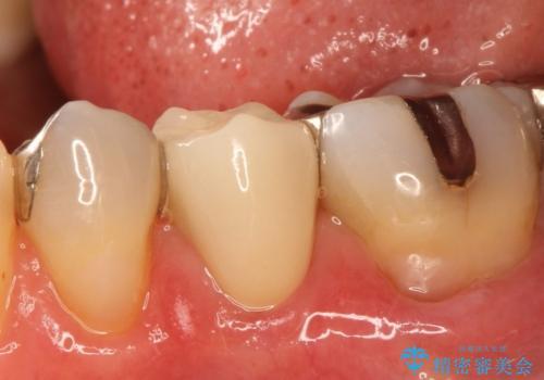 歯が欠けてしまった セラミッククラウンで治療の症例 治療後