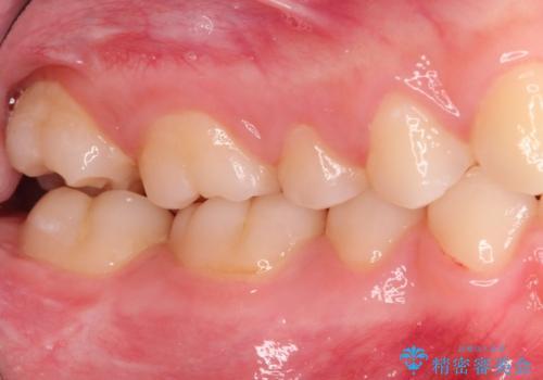 神経まで届く深いむし歯。根管治療~セラミックの被せものの治療前
