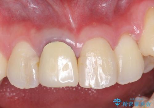 オールセラミッククラウン 前歯を綺麗にしたいの治療前