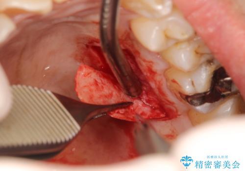 インプラント周囲の歯肉移植~最終的なセラミックを入れるまでの治療中