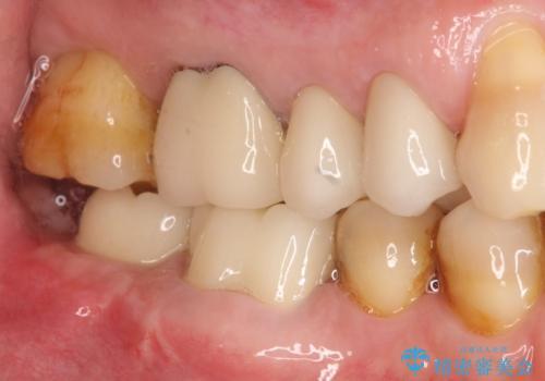 下の奥歯のインプラントと根管治療での咬合回復の治療後