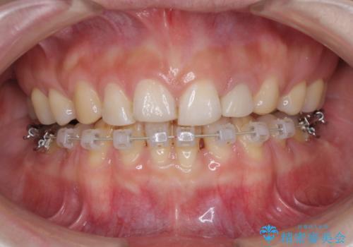 口元が出ているのが気になる ハーフリンガルによる抜歯矯正の治療中