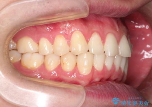 上の前歯に隙間ある インビザラインによる目立たない矯正の治療中