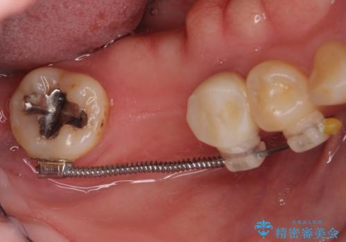 抜けたまま放置した奥歯 部分矯正やインプラントを用いた咬合回復の治療中
