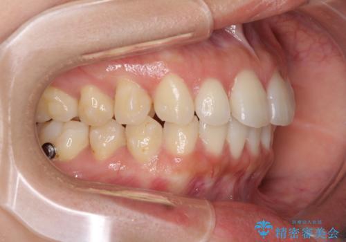 前歯のデコボコと出っ歯を治したい インビザラインによる非抜歯矯正治療の治療中