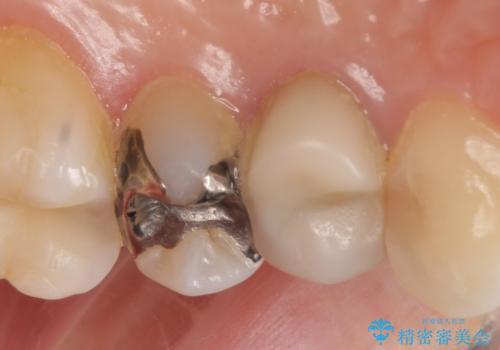 左上4番目の歯で咬むと痛むと来院された方のオールセラミッククラウンの治療前