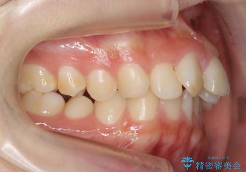 30代女性 抜かない矯正 出っ歯 低位歯を並べましたの治療前
