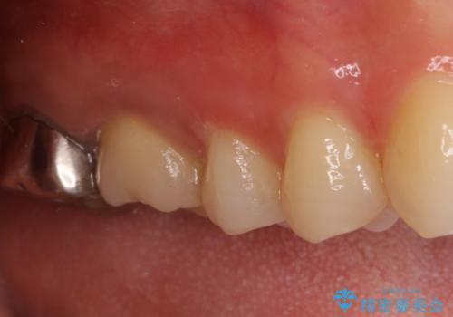 割れた奥歯 インプラントによる咬合回復の治療前