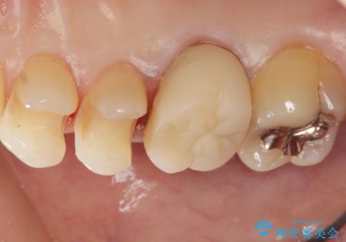 笑った時に見える銀歯を白くしたい 30代女性の治療中