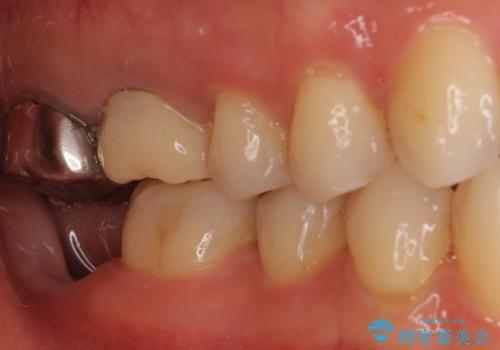 割れた奥歯 インプラントによる咬合回復の治療中