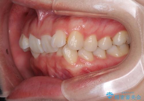 前歯を気にせず笑いたい インビザラインによる矯正治療の治療前