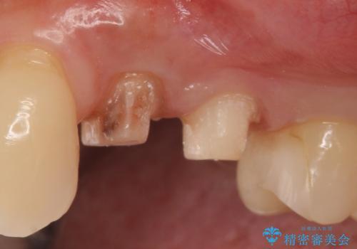 左上4番目の歯で咬むと痛むと来院された方のオールセラミッククラウンの治療中