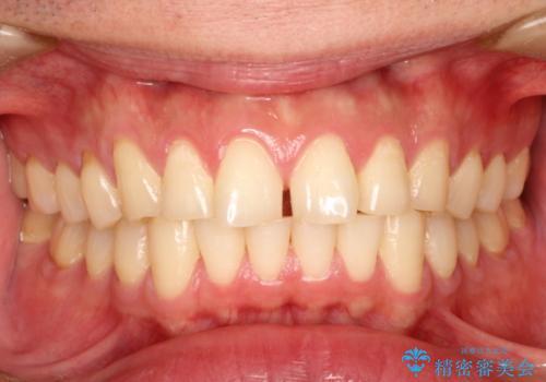 上の前歯に隙間ある インビザラインによる目立たない矯正の症例 治療前