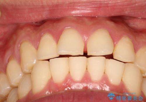 上の前歯に隙間ある インビザラインによる目立たない矯正の治療前