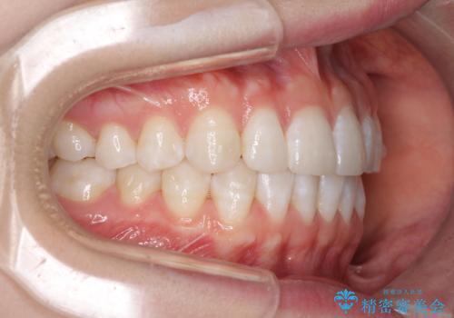 インビザライン・ライトによる前歯部叢生の改善の治療中