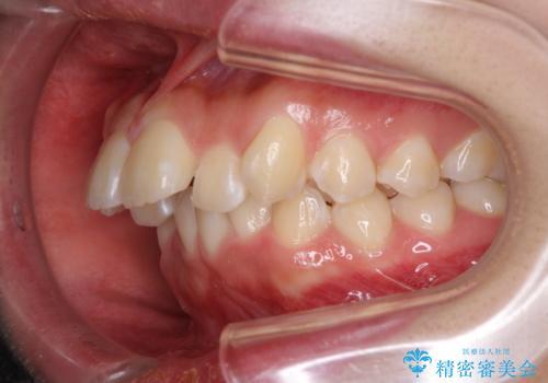 前歯の出っ歯とでこぼこ 目立たないワイヤーで抜歯矯正の治療前