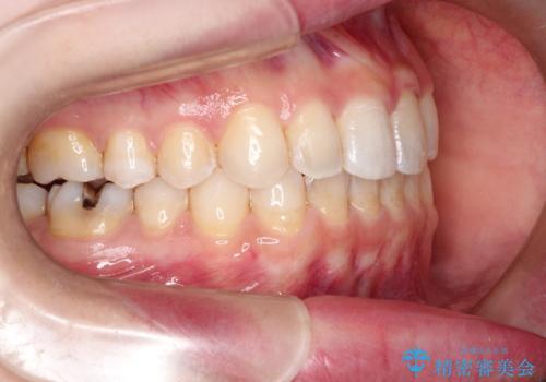 前歯のガタガタを結婚式前にキレイにしたいの治療後
