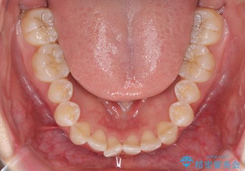 インビザライン・ライトによる前歯部叢生の改善の治療前