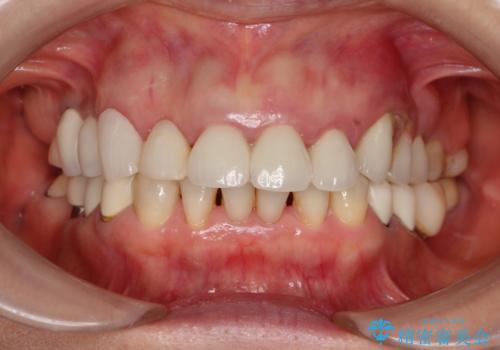 乱れた咬み合わせを治したい 全顎補綴治療の治療前