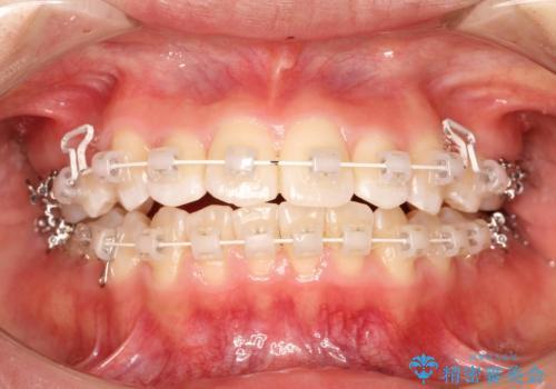 王道・従来のワイヤー矯正 表の装置で手早くきれいな歯並びをの治療中