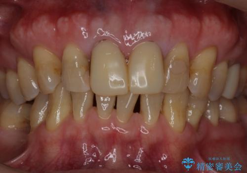 セラミックを被せる前にホワイトニングで歯を白くの治療前