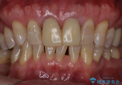 セラミックを被せる前にホワイトニングで歯を白くの治療後