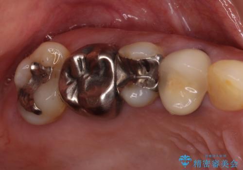 抜けたまま放置した奥歯 部分矯正やインプラントを用いた咬合回復の治療前
