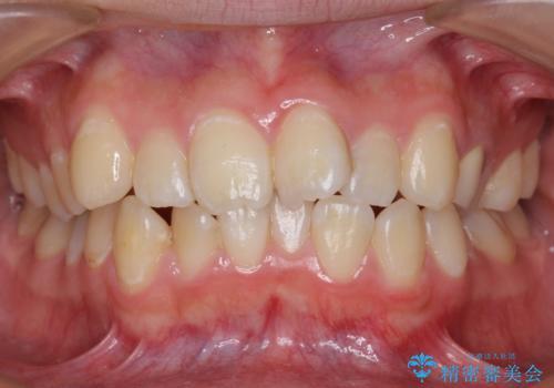20代女性 前歯のねじれ・出っ歯 インビザラインで奥歯を下げて抜かずに治療の症例 治療前