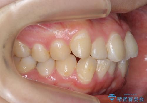 20代女性 前歯のねじれ・出っ歯 インビザラインで奥歯を下げて抜かずに治療の治療前