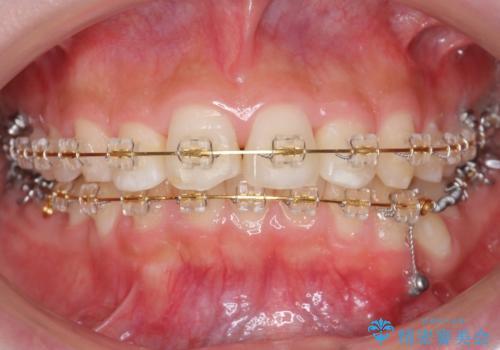 30代女性 抜かない矯正 出っ歯 低位歯を並べましたの治療中