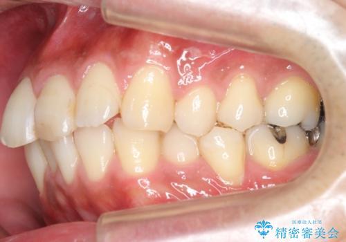 30代男性 歯を抜かないインビザライン 前歯のがたつきの治療の治療前