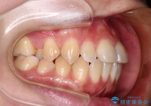 インビザラインでガタガタの治療 かんでいない奥歯を正しい位置への治療前
