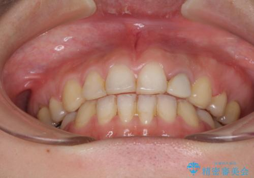 口元が出ているのが気になる ハーフリンガルによる抜歯矯正の治療後