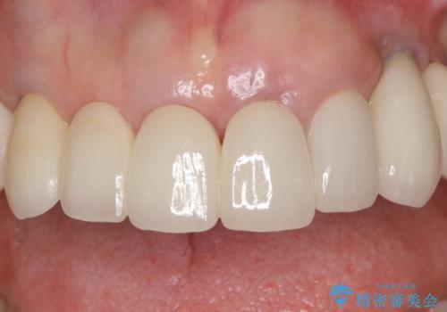 乱れた咬み合わせを治したい 全顎補綴治療の治療後