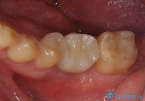 左下奥歯 折れて抜歯 インプラントへの症例 治療後