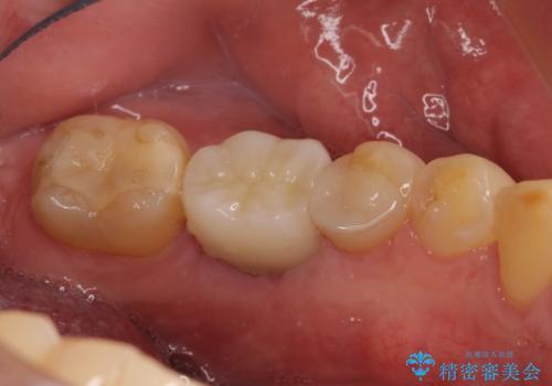 左下奥歯 折れて抜歯 インプラントへの治療後