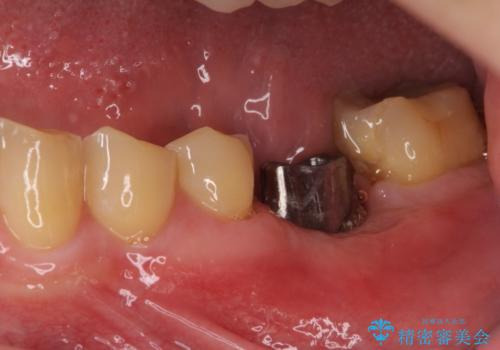 左下奥歯 折れて抜歯 インプラントへの治療中