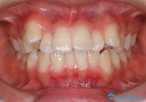 王道・従来のワイヤー矯正 表の装置で手早くきれいな歯並びをの症例 治療前