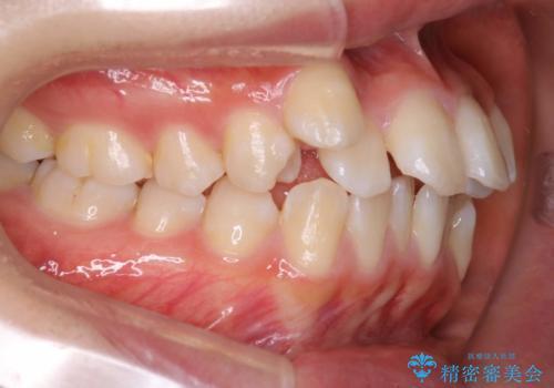 王道・従来のワイヤー矯正 表の装置で手早くきれいな歯並びをの治療前