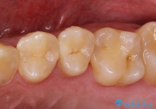 拡大鏡を用いたむし歯の治療。精度の高いセラミックインレーの症例 治療前