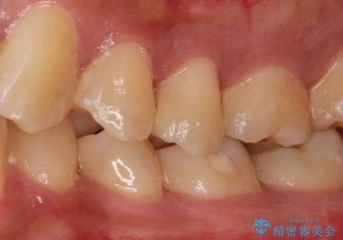 拡大鏡を用いたむし歯の治療。精度の高いセラミックインレーの治療前