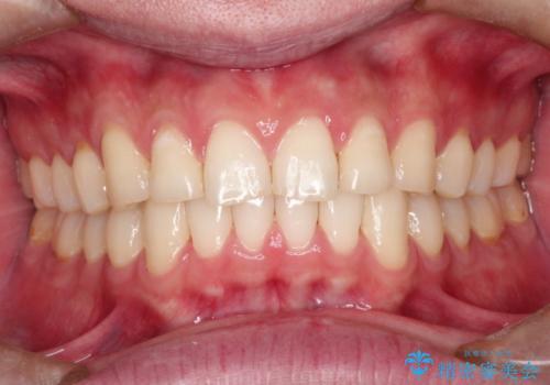 上の前歯に隙間ある インビザラインによる目立たない矯正の症例 治療後
